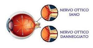 nervo-ottico